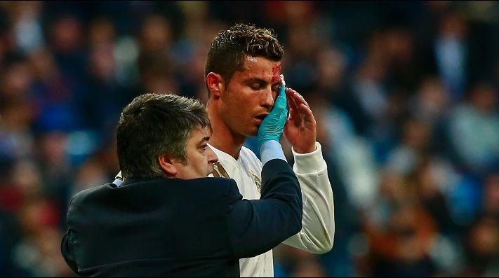 Así fue la brutal patada que hizo sangrar a Cristiano Ronaldo